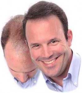 hair transplantation kolkata