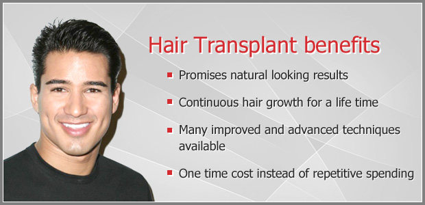 Hair-Transplant-benefits