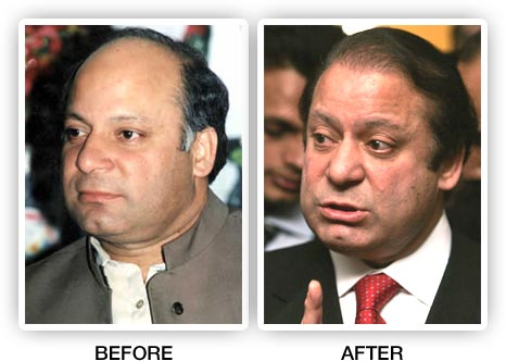 Nawaz Sharif Before and after Hair Transplant