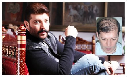 Aditya Pancholi Before and after Hair Transplant