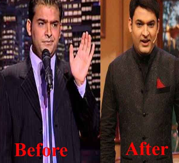 kapil-sharma-hair-transplant