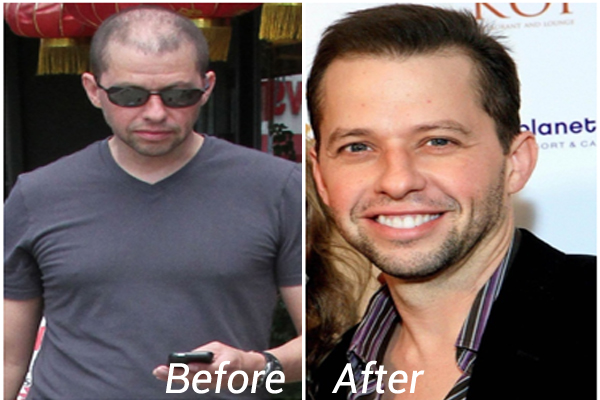 Jon Cryer Hair transplant