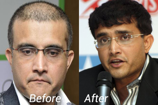 Sourav Ganguly Hair Transplant