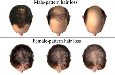 Hair Fall pattern