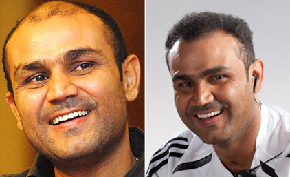 Virendra Sehwag hair loss and treatment