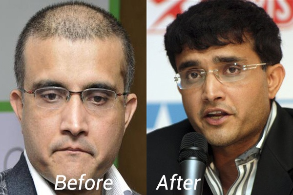 sourav ganguly hair transplantation in Kolkata