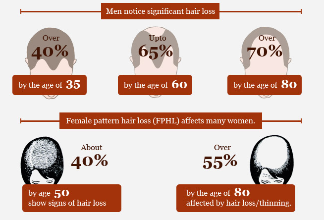 Number of hair lost on daily basis by men and women