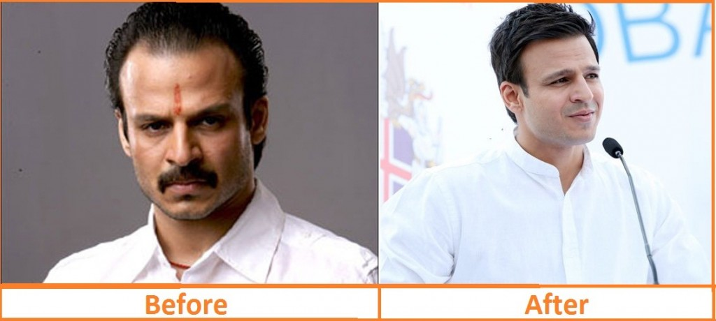 vivek oberoi hair regrowth treatment