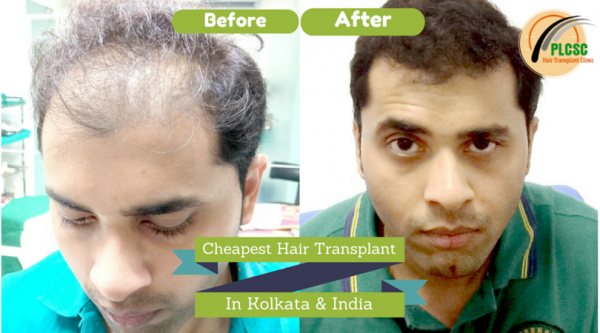 Hair Transplant before after in Kolkata