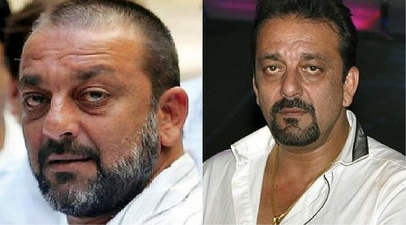 10 Bollywood Celebrities And Cricketers Hair Transplant Stories