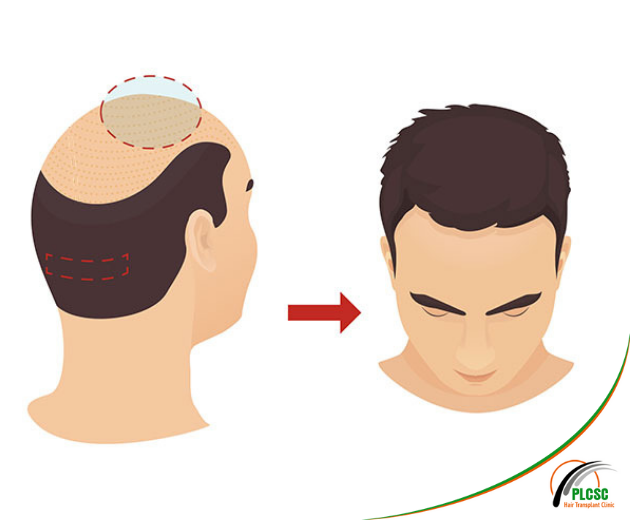 FUT Hair Transplant in Kolkata