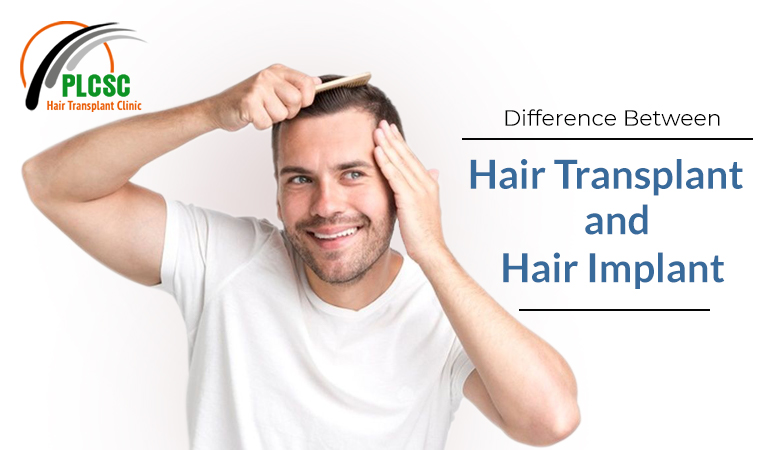 Hair Transplants and Hair Implants